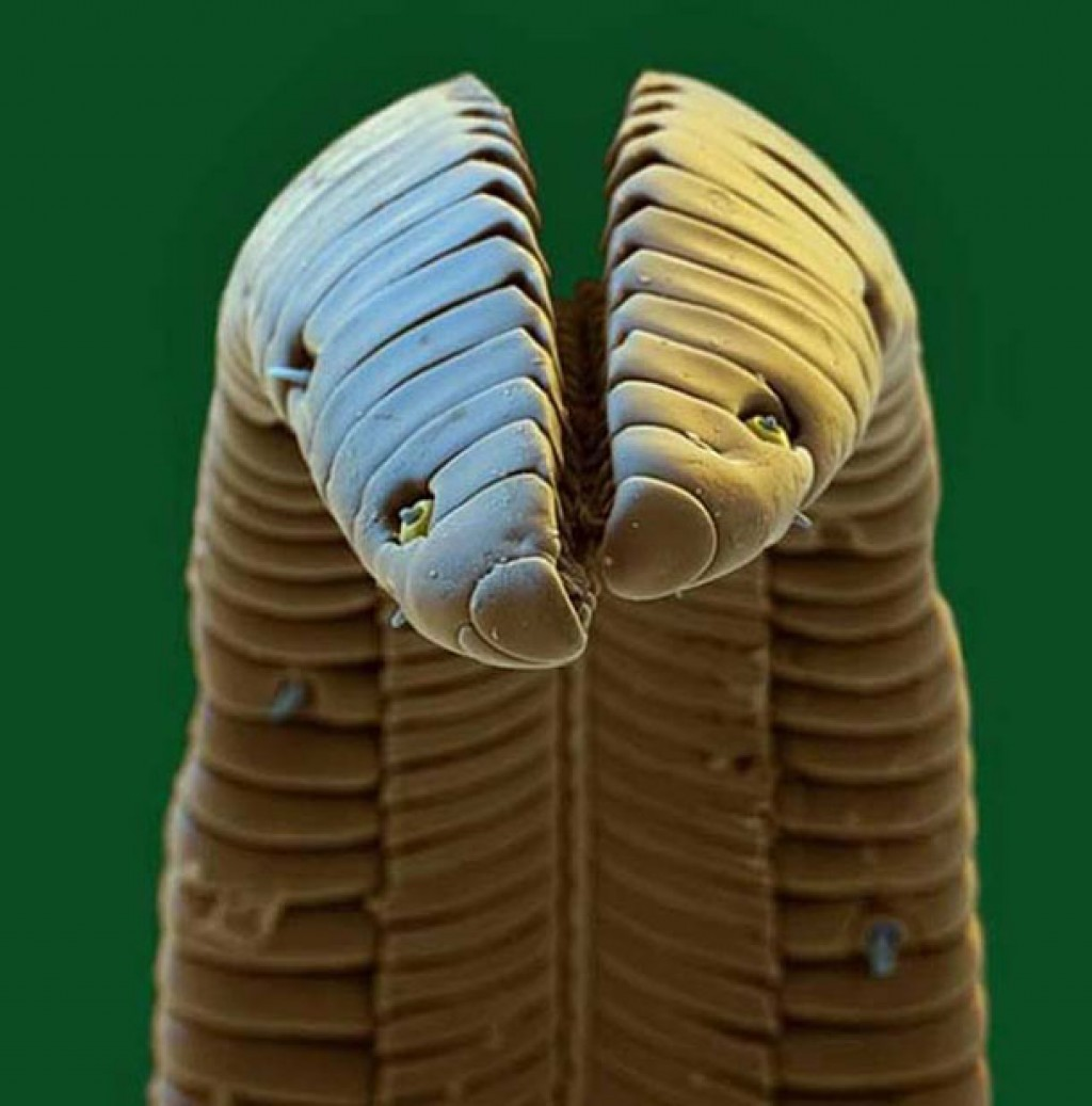 20 astonishing microscopic images you won't imagine