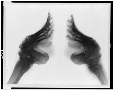 Bizarre and rather disturbing-X-rays